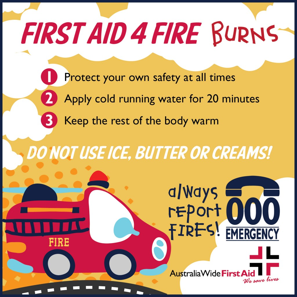 First Aid For Fire Burns